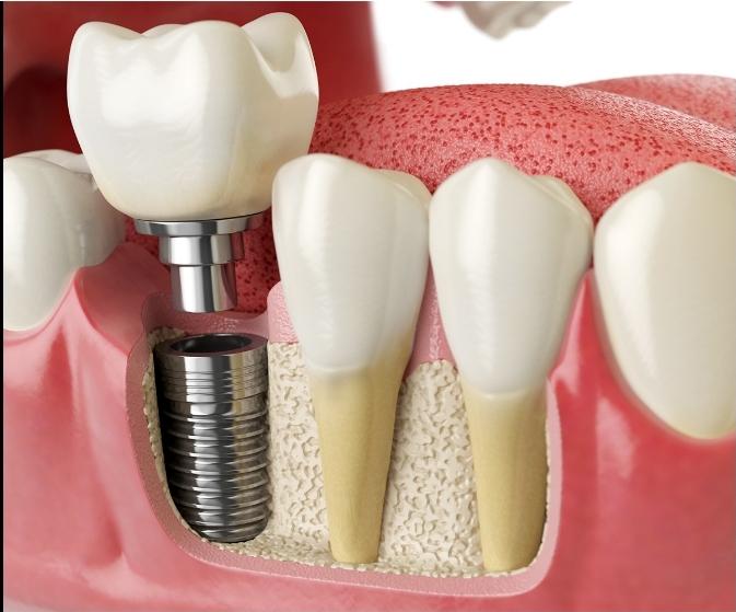 Associazione Dentisti Napoli