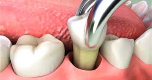 Chirurgia Estrattiva: dal dente in arcata a quello incluso