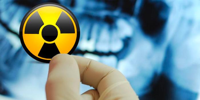 radioprotezione-contro-le-radiazioni-ionizzanti